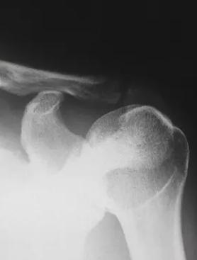 Enflamasyonlu ve Dejeneratif Eklem Hastalıkları - Makaleler - Ozon Sağlık Hizmetleri